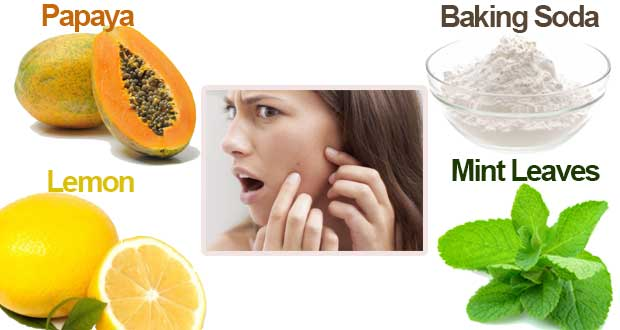 Pimple-remove-Tips-2